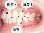 (海苔)歯につくのを恐れてる。