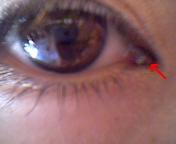 目の中のホクロ
