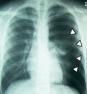 肺気胸info