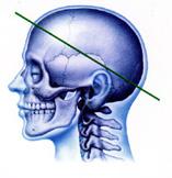 脳神経外科を考える
