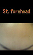 St.Forehead