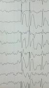 みんなの脳波(EEG)