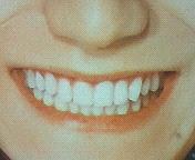 亮ちゃんの歯並び