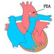 動脈管開存症(PDA)