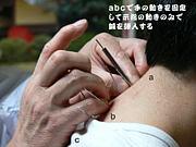 長尾正人先生の新鍼法
