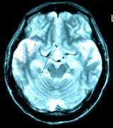 ヘルペス脳炎