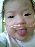動脈管開存症・肺高血圧の子供