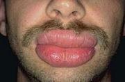 唇コバヤカワタロウ唇