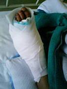 足首靭帯損傷の会