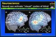 7.神経系の可塑性