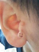 副耳(ふくじ)
