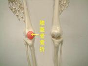 膝蓋骨骨折同好会