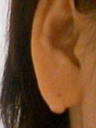 耳たぶのしこり