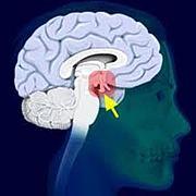 脳下垂体腫瘍