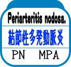 結節性多発動脈炎(PN、MPA)