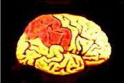 脳梗塞・脳出血交流掲示板