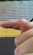 小指の骨が変形している同盟