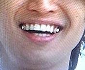 大倉忠義の銀歯が好き