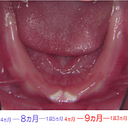 乳歯の生え方