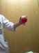 慢性活動性EBウイルス感染症
