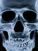 髑髏 骸骨