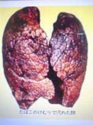 費用をかけず禁煙成功できる方法