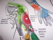 トリガーポイント療法(鍼)