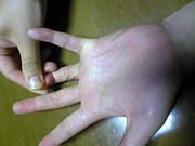 私の小指だけ曲がりません。