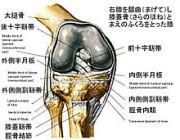 右膝が痛い