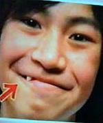 新垣佑斗の【一本八重歯】
