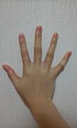 指の皮を剥いてしまう