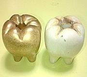 歯科技工士の妻たち