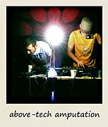 above-tech amputation
