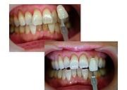 ポリリン酸で歯を白く!強く!