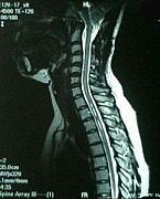 キアリ奇形と脊髄空洞症