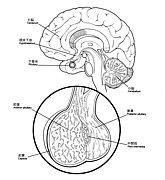 間脳下垂体疾患 下垂体腫瘍