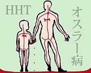 オスラー病(HHT)
