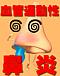 血管運動性鼻炎