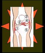膝蓋軟骨軟化症