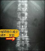 youtubu (腰痛部)